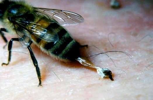 Bee sting symptoms - what to put on a bee sting (5)